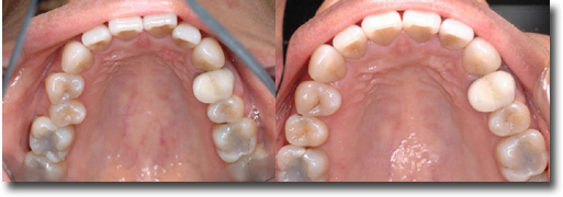 Welcome to Sarver Orthodontics